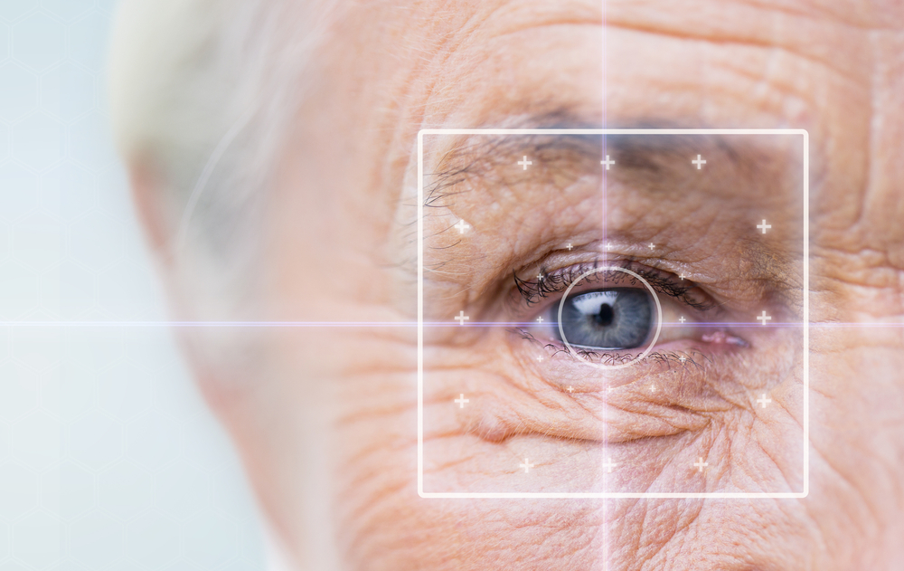 Macular degeneration also called age-related macular degeneration or AMD is a leading cause of irreversible vision loss among Americans over 60.